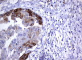 IHC of paraffin-embedded Carcinoma of Human liver tissue using anti-TNFRSF8 mouse monoclonal antibody.