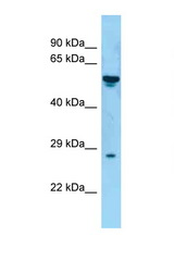 TNFSF8 antibody LS-C146553 Western blot of Fetal Kidney lysate. Antibody concentration 1 ug/ml.  This image was taken for the unconjugated form of this product. Other forms have not been tested.