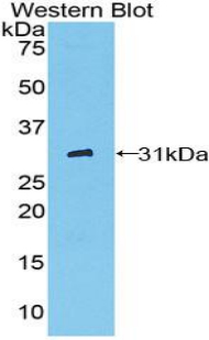 CD32A Antibody - Western blot of recombinant FCGR2A / CD32A.  This image was taken for the unconjugated form of this product. Other forms have not been tested.