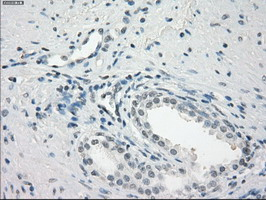 IHC of paraffin-embedded prostate tissue using anti-FCGR2A mouse monoclonal antibody. (Dilution 1:50).
