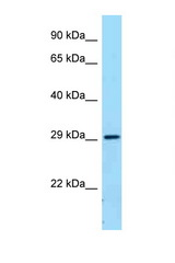 FCGR2B / CD32B antibody Western blot of Fetal Lung lysate. Antibody concentration 1 ug/ml.  This image was taken for the unconjugated form of this product. Other forms have not been tested.