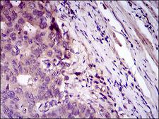 CD33 Antibody - IHC of paraffin-embedded esophageal cancer tissues using CD33 mouse monoclonal antibody with DAB staining.