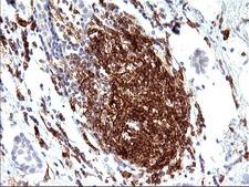 CD33 Antibody - IHC of paraffin-embedded Adenocarcinoma of Human breast tissue using anti-CD33 mouse monoclonal antibody. (Heat-induced epitope retrieval by 10mM citric buffer, pH6.0, 120°C for 3min).