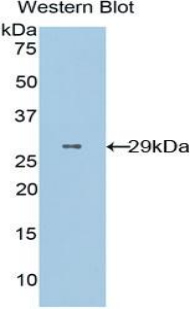 CD36 Antibody - Western blot of recombinant CD36.  This image was taken for the unconjugated form of this product. Other forms have not been tested.