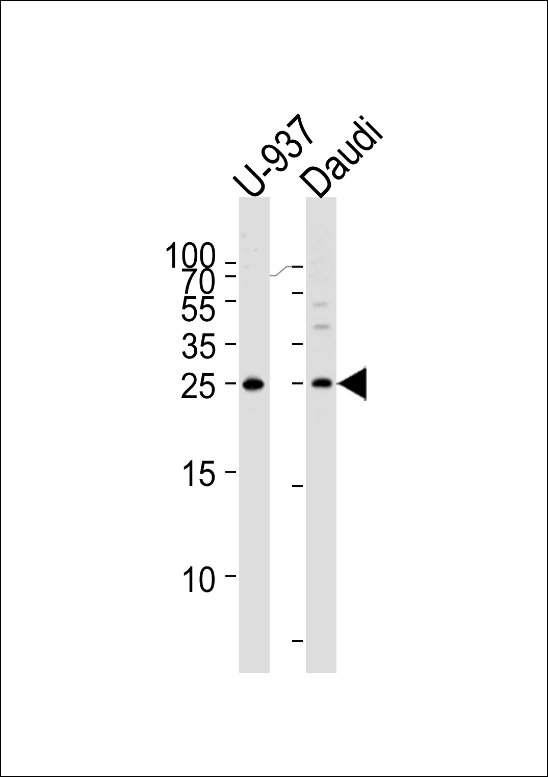 Western blot of lysates from U-937, Daudi cell line (from left to right), using CD37 Antibody. Antibody was diluted at 1:1000 at each lane. A goat anti-rabbit IgG H&L (HRP) at 1:5000 dilution was used as the secondary antibody. Lysates at 35ug per lane.