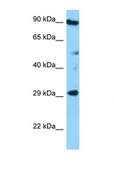 CD37 antibody Western blot of HT1080 Cell lysate. Antibody concentration 1 ug/ml.  This image was taken for the unconjugated form of this product. Other forms have not been tested.