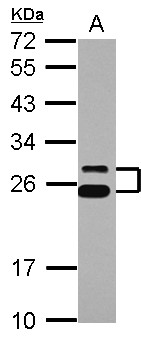 Sample (30 ug of whole cell lysate) A: K562 12% SDS PAGE CD37 antibody diluted at 1:1000