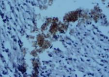 CD4 Antibody - Immunohistochemistry-Paraffin: CD4 Antibody - Staining of paraffin-embedded mouse brain tissue. Photo courtesy of product review by verified customer.  This image was taken for the unconjugated form of this product. Other forms have not been tested.