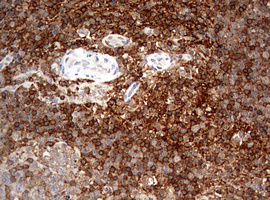 CD4 Antibody - IHC of paraffin-embedded Human lymph node tissue using anti-CD4 mouse monoclonal antibody. (Heat-induced epitope retrieval by 10mM citric buffer, pH6.0, 120°C for 3min).
