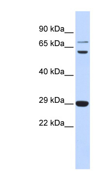 CD40LG / CD54 antibody LS-B6534 Western blot of Fetal Muscle lysate.  This image was taken for the unconjugated form of this product. Other forms have not been tested.