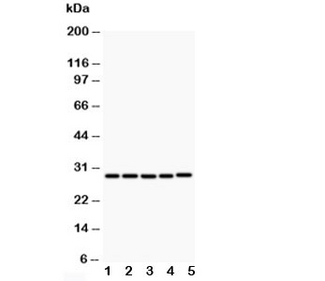 Western blot testing of CD40L antibody and Lane 1: MCF-7; 2: HeLa; 3: Jurkat; 4: HMY2; 5: COLO320; Predicted size: 29KD; Observed size: 29KD