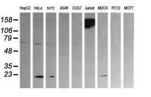 Western blot of extracts (35 ug) from 9 different cell lines by using anti-PTPRC monoclonal antibody (HepG2: human; HeLa: human; SVT2: mouse; A549: human; COS7: monkey; Jurkat: human; MDCK: canine; PC12: rat; MCF7: human).