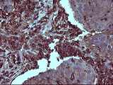 IHC of paraffin-embedded Carcinoma of Human lung tissue using anti-PTPRC mouse monoclonal antibody.