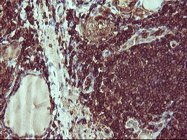 IHC of paraffin-embedded Human thyroid tissue using anti-PTPRC mouse monoclonal antibody.