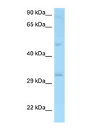 CD48 Antibody - CD48 antibody Western blot of MCF7 Cell lysate. Antibody concentration 1 ug/ml.  This image was taken for the unconjugated form of this product. Other forms have not been tested.