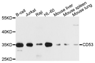 Western blot analysis of extracts of various cell lines, using CD53 antibody at 1:1000 dilution. The secondary antibody used was an HRP Goat Anti-Rabbit IgG (H+L) at 1:10000 dilution. Lysates were loaded 25ug per lane and 3% nonfat dry milk in TBST was used for blocking. An ECL Kit was used for detection and the exposure time was 1s.