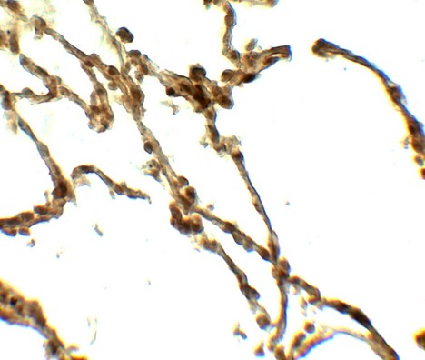 Immunohistochemistry of DAF in human lung tissue with DAF antibody at 5 ug/ml.