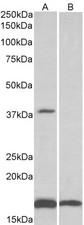 B3 ugAT1 antibody (0.1 ug/ml) staining of Human Frontal Cortex lysate (35 ug protein in RIPA buffer) with (B) and without (A) blocking with the immunizing peptide. Primary incubation was 1 hour. Detected by chemiluminescence.