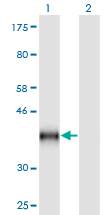 Western Blot analysis of CD59 expression in transfected 293T cell line by CD59 monoclonal antibody (M02), clone 3G6.Lane 1: CD59 transfected lysate (Predicted MW: 41.2 KDa).Lane 2: Non-transfected lysate.