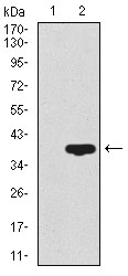Western blot using CD59 monoclonal antibody against HEK293 (1) and CD59 (AA: 31-111)-hIgGFc transfected HEK293 (2) cell lysate.