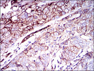 IHC of paraffin-embedded bladder cancer tissues using CD59 mouse monoclonal antibody with DAB staining.