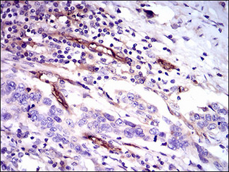 IHC of paraffin-embedded esophageal cancer tissues using CD59 mouse monoclonal antibody with DAB staining.