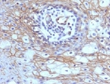 Formalin-fixed, paraffin-embedded human tongue stained with CD59 antibody (MACIF/629).  This image was taken for the unmodified form of this product. Other forms have not been tested.