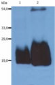 Western Blotting analysis (non-reducing conditions) of whole cell lysate of HPB-ALL human peripheral blood T cell leukemia cell line using anti-CD59 (MEM-43/5).  Lane 1: original cell lysate  Lane 2: material immunoprecipitated with anti-human CD59 (MEM-43)