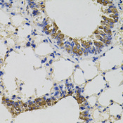 Immunohistochemistry of paraffin-embedded mouse lung using CD59 antibody(40x lens).