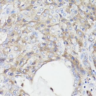Immunohistochemistry of paraffin-embedded human lung cancer using CD59 antibodyat dilution of 1:100 (40x lens).