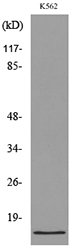 Western blot analysis of lysate from K562 cells, using CD59 Antibody.