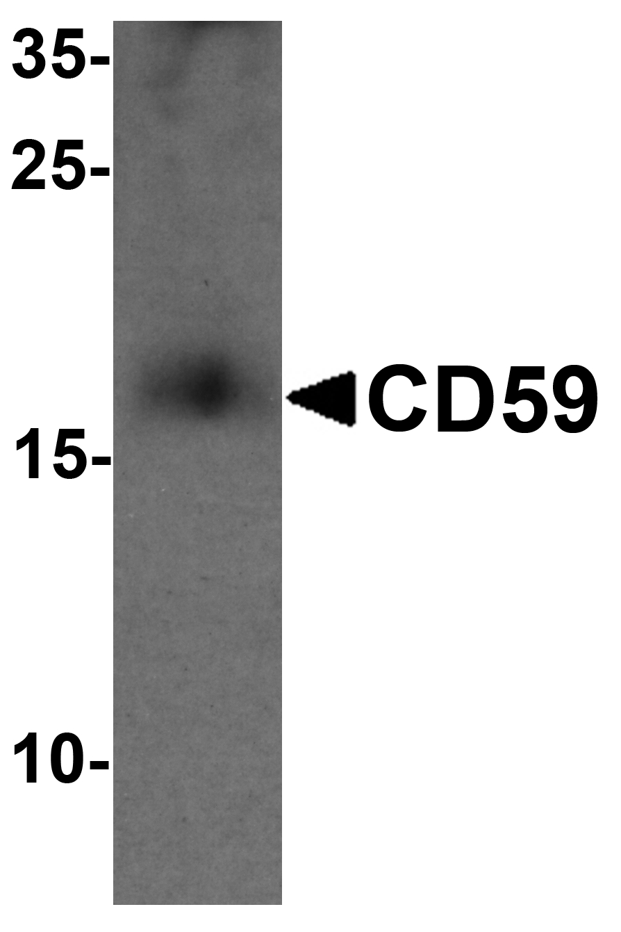 Western blot analysis of CD59 in mouse spleen tissue lysate with CD59 antibody at 1 ug/ml
