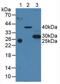CD63 Antibody - Western Blot; Sample: Lane1: Human Serum; Lane2: Porcine Liver Tissue; Lane3: Human A375 Cells.