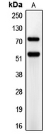 CD66a+e Antibody - Western blot analysis of CD66a/e expression in A549 (A) whole cell lysates.
