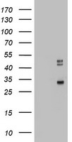 HEK293T cells were transfected with the pCMV6-ENTRY control (Left lane) or pCMV6-ENTRY CD68 (Right lane) cDNA for 48 hrs and lysed. Equivalent amounts of cell lysates (5 ug per lane) were separated by SDS-PAGE and immunoblotted with anti-CD68.