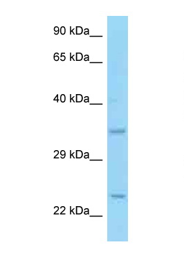 CD69 antibody Western blot of HCT15 Cell lysate. Antibody concentration 1 ug/ml.  This image was taken for the unconjugated form of this product. Other forms have not been tested.
