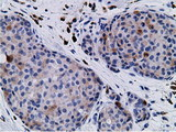 Immunohistochemical staining of paraffin-embedded Adenocarcinoma of Human breast tissue using anti-CD80 mouse monoclonal antibody.