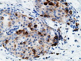 IHC of paraffin-embedded Adenocarcinoma of Human breast tissue using anti-CD80 mouse monoclonal antibody.