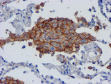 IHC of paraffin-embedded Carcinoma of Human lung tissue using anti-CD80 mouse monoclonal antibody.