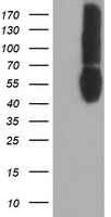 CD80 Antibody - HEK293T cells were transfected with the pCMV6-ENTRY control (Left lane) or pCMV6-ENTRY CD80 (Right lane) cDNA for 48 hrs and lysed. Equivalent amounts of cell lysates (5 ug per lane) were separated by SDS-PAGE and immunoblotted with anti-CD80.