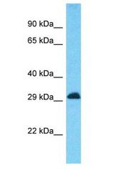 CD81 antibody Western Blot of Placenta. Antibody dilution: 1 ug/ml.  This image was taken for the unconjugated form of this product. Other forms have not been tested.