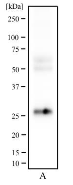 Western Blot: CD81 Antibody (1D6) - Western blot analysis of human testis tissue (A) using CD81 antibody at a concentration of 2 ug/ml.  This image was taken for the unconjugated form of this product. Other forms have not been tested.