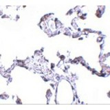 Immunohistochemistry of CD81 in human lung tissue with CD81 antibody at 5 µg/mL.