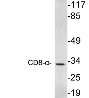 Western blot of extracts from Jurkat cells, using CD8- alpha antibody.