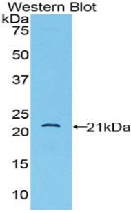 CD8B / CD8 Beta Antibody - Western blot of recombinant CD8B / CD8 Beta.  This image was taken for the unconjugated form of this product. Other forms have not been tested.