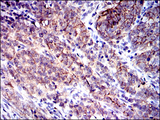 IHC of paraffin-embedded cervical cancer tissues using CD9 mouse monoclonal antibody with DAB staining.