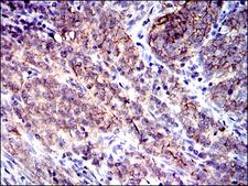 CD9 Antibody - IHC of paraffin-embedded cervical cancer tissues using CD9 mouse monoclonal antibody with DAB staining.