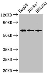 CD96 / TACTILE Antibody - Western Blot Positive WB detected in: HepG2 whole cell lysate, Jurkat whole cell lysate, HEK293 whole cell lysate All lanes: CD96 antibody at 2.5µg/ml Secondary Goat polyclonal to rabbit IgG at 1/50000 dilution Predicted band size: 66, 64 kDa Observed band size: 66 kDa