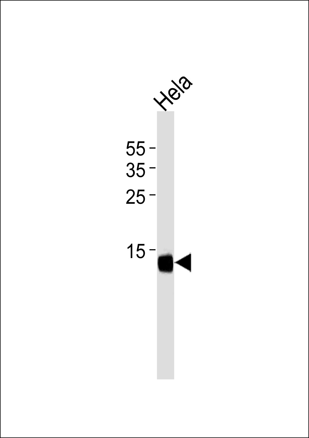 CDA Antibody western blot of HeLa cell line lysates (35 ug/lane). The CDA antibody detected the CDA protein (arrow).