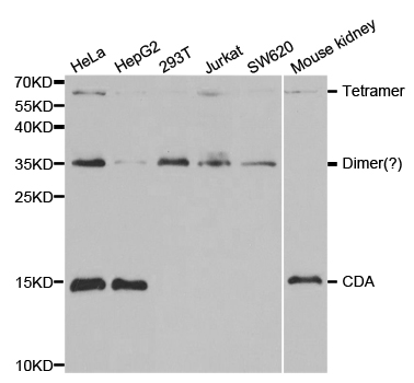 Western blot analysis of extracts of various cell lines, using CDA antibody.